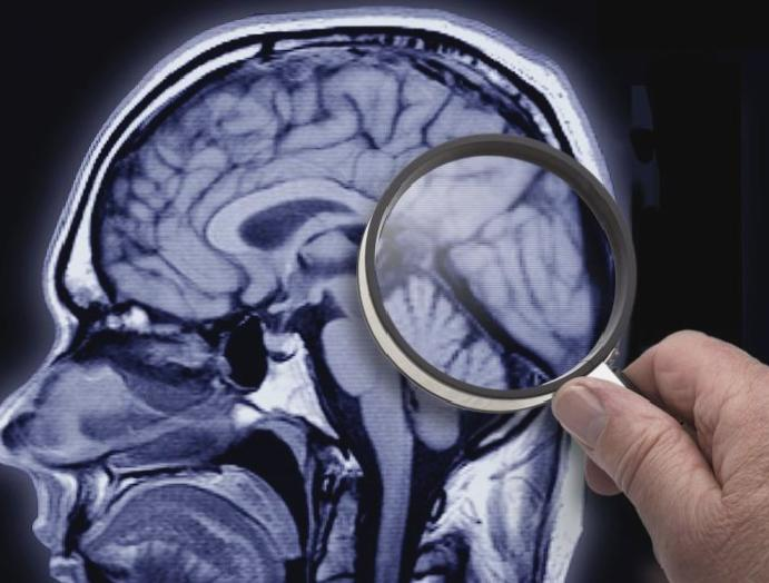 'Exciting' results Alzheimer's 20 years falters